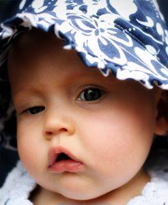 A idade ideal para cirurgia de correção da ptose congênita é por volta de 3 anos