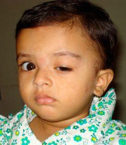 ptose palpebral congênita em criança